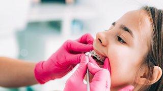 Appareils dentaires: business ou nécessité?